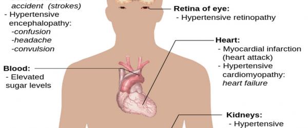 HBP - symptoms