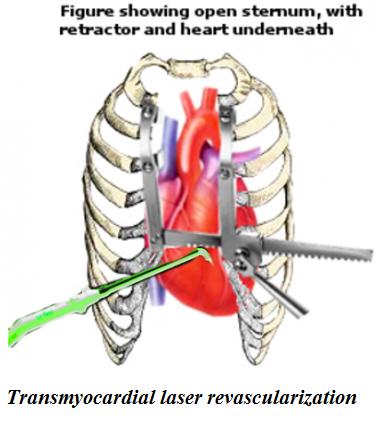 Transmyocardial laser revascularization