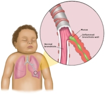 bronchiolitis_anatomy_pi