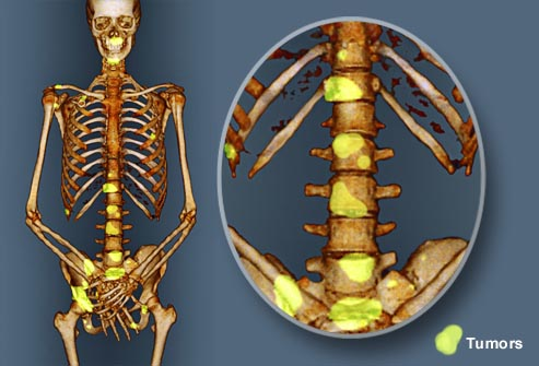 Bone Metastases - The Significance of Radiation Therapy