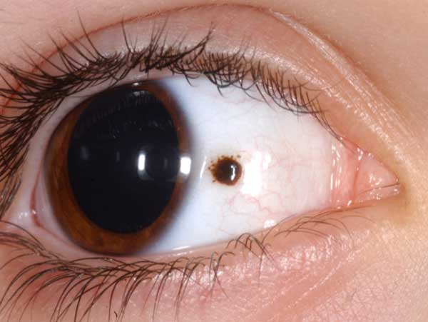 Dark Spot on the sclera of eye